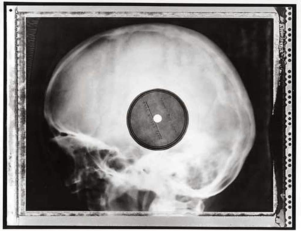 X Ray Dub Plates The Ultimate Picture Disk Djworx